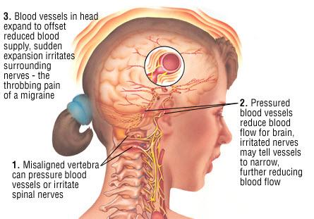 migraine-headache-treatment-seattle-chiropractor.jpg